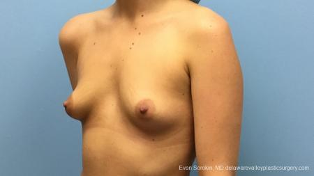 Philadelphia Breast Augmentation 12540 - Before Image 3