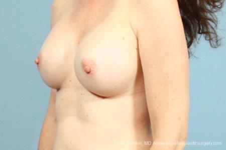 Philadelphia Breast Augmentation 8662 -  After Image 3