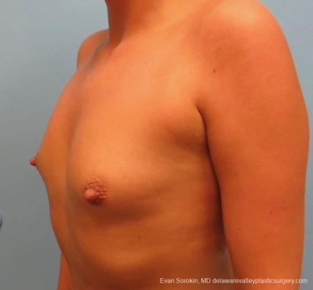 Philadelphia Breast Augmentation 8826 - Before and After Image 5