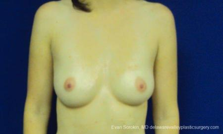 Philadelphia Breast Augmentation 8777 - Before Image 1