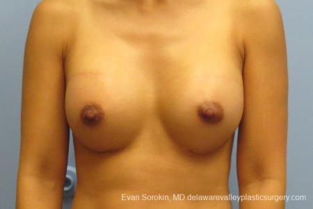 Philadelphia Breast Augmentation 8661 -  After Image 1