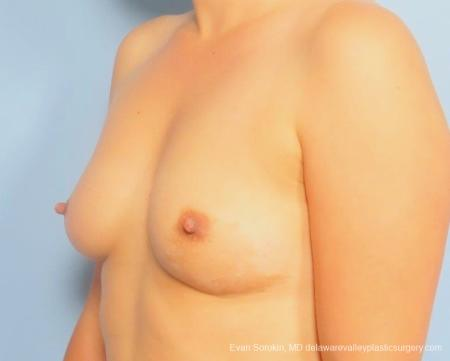 Philadelphia Breast Augmentation 8797 - Before Image 3