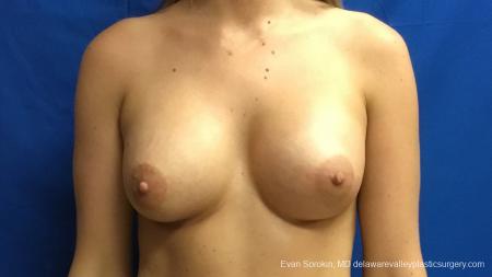 Philadelphia Breast Augmentation 12540 -  After Image 1