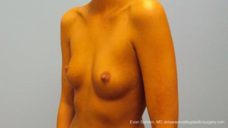 Philadelphia Breast Augmentation 9292 - Before Image 3