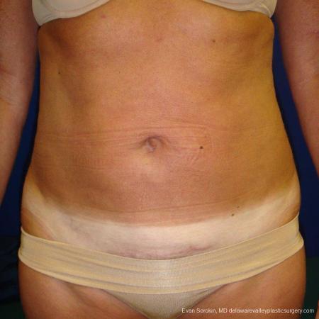 Philadelphia Liposuction 9488 - After Image