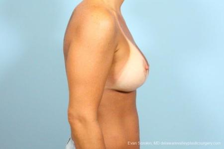 Philadelphia Breast Lift and Augmentation 8687 -  After Image 3