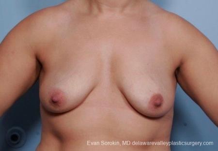 Philadelphia Breast Lift and Augmentation 8702 - Before Image 1