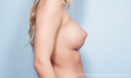Philadelphia Breast Augmentation 9177 -  After Image 5