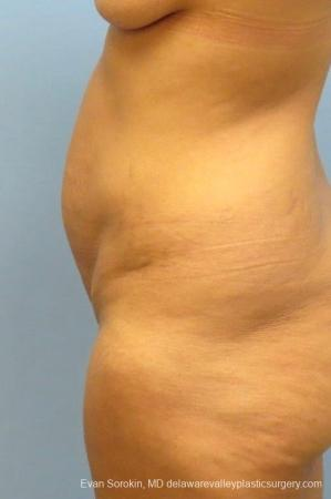 Philadelphia Abdominoplasty 8825 - Before and After Image 3