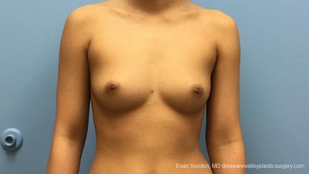 Philadelphia Breast Augmentation 13183 - Before Image 1