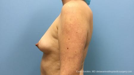 Philadelphia Breast Augmentation 13181 - Before and After Image 5