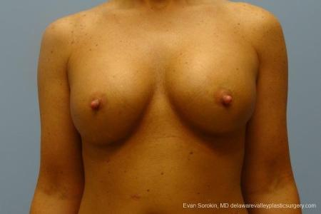 Philadelphia Breast Augmentation 8774 -  After Image 1