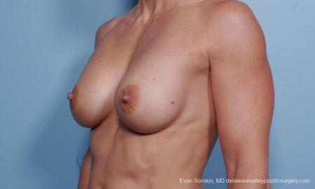 Philadelphia Breast Augmentation 9455 - Before Image 4