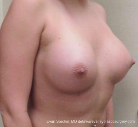 Philadelphia Breast Augmentation 8826 -  After Image 2
