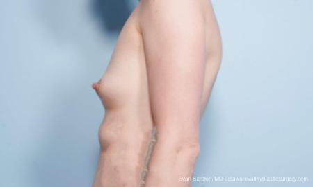 Philadelphia Breast Augmentation 9175 - Before and After Image 5