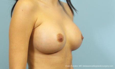 Philadelphia Breast Augmentation 9195 -  After Image 2