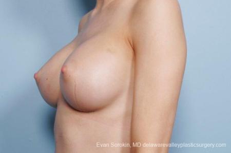 Philadelphia Breast Augmentation 8663 -  After Image 3
