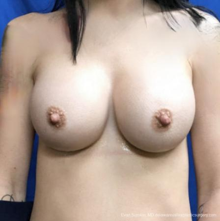 Breast Augmentation: Patient 161 - After Image 1