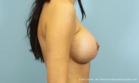 Philadelphia Breast Augmentation 9195 -  After Image 3
