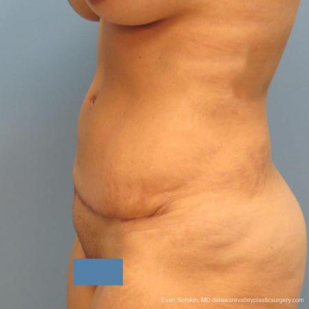 Philadelphia Abdominoplasty 9478 -  After Image 3