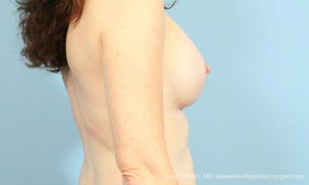Philadelphia Breast Augmentation 8662 -  After Image 4