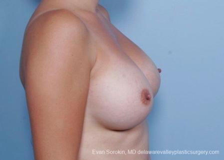 Philadelphia Breast Augmentation 8797 -  After Image 4