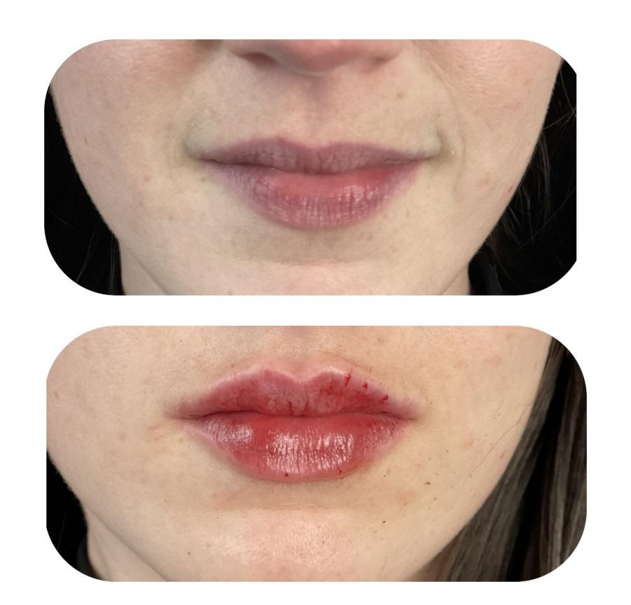 Lip Augmentation: Patient 7 - Before and After Image 1