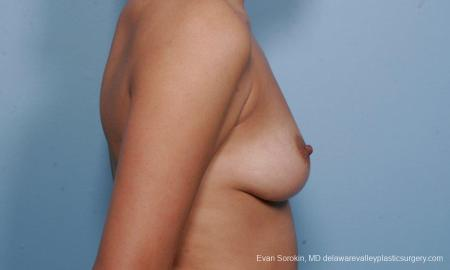 Philadelphia Breast Augmentation 9373 - Before Image 3