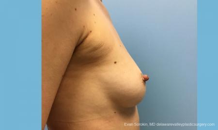 Philadelphia Breast Augmentation 12514 - Before Image 4