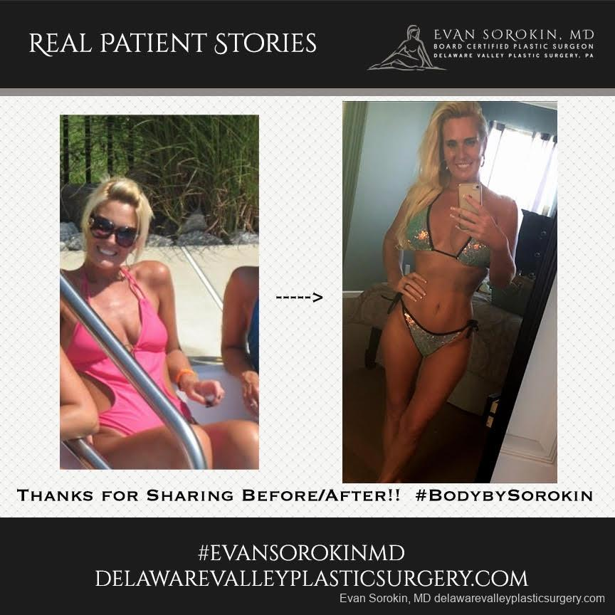 Real Patient Stories: Patient 23 - Before and After Image 1