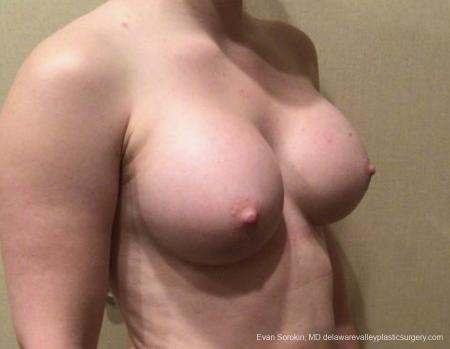 Breast Augmentation: Patient 163 - After Image 2