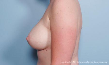 Philadelphia Breast Augmentation 8658 -  After Image 5