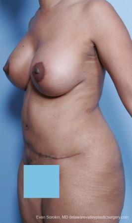 Philadelphia Mommy Makeover 8691 -  After Image 3