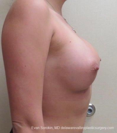 Philadelphia Breast Augmentation 8826 -  After Image 4