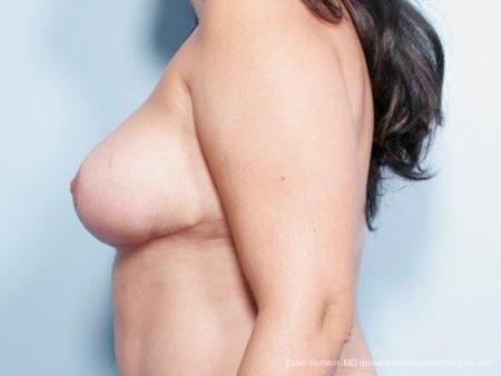 Philadelphia Breast Reduction 9441 -  After Image 5