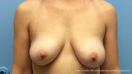 Philadelphia Breast Lift and Augmentation 13179 - Before Image 1