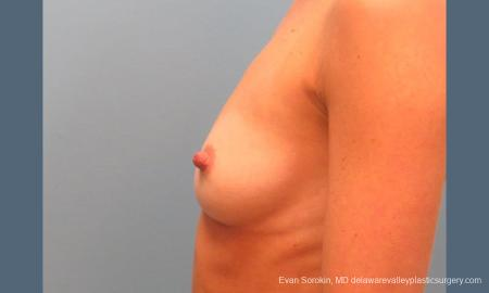 Philadelphia Breast Augmentation 9396 - Before and After Image 5