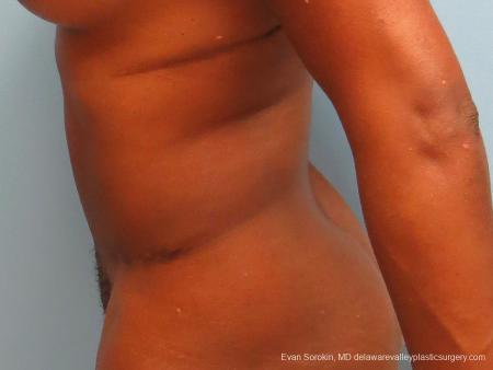Philadelphia Abdominoplasty 9339 -  After Image 5