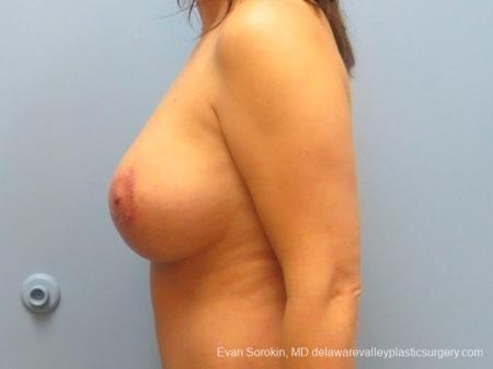 Philadelphia Breast Lift and Augmentation 8671 -  After Image 5