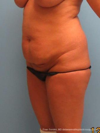 Philadelphia Abdominoplasty 9463 - Before Image 4