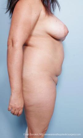 Philadelphia Mommy Makeover 9442 - Before Image 3