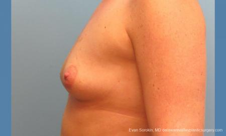 Philadelphia Breast Augmentation 9487 - Before and After Image 5