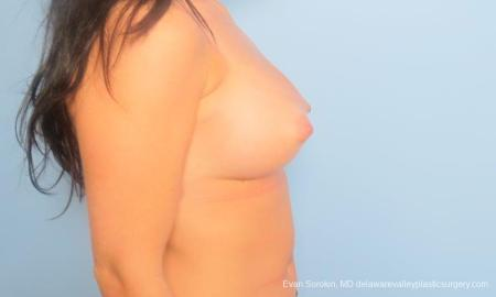Philadelphia Breast Augmentation 9181 -  After Image 3