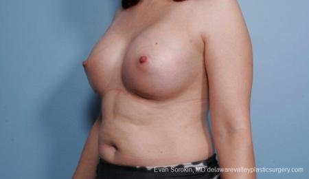 Breast Augmentation: Patient 54 - After Image 4