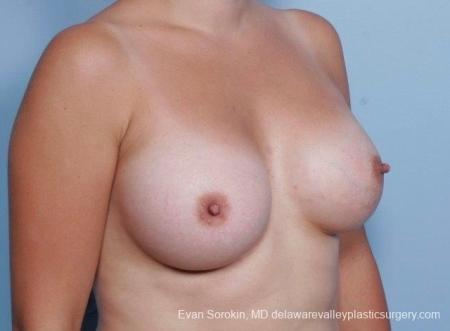 Philadelphia Breast Augmentation 8797 -  After Image 2