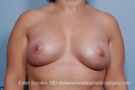Philadelphia Breast Lift and Augmentation 8702 -  After Image 1