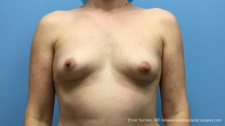 Philadelphia Breast Augmentation 13181 - Before Image 1