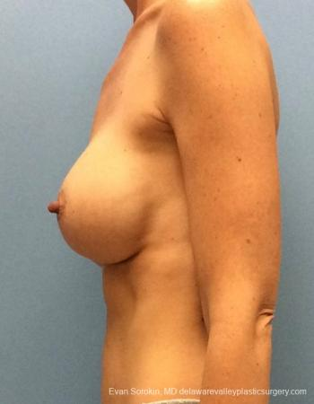 Philadelphia Breast Augmentation 13069 - Before and After Image 5