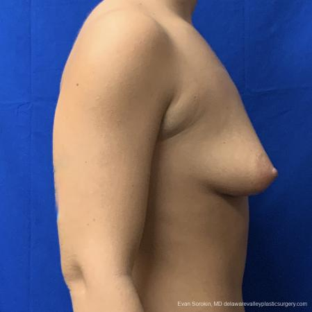 Breast Lift And Augmentation: Patient 43 - Before and After Image 3