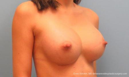 Philadelphia Breast Augmentation 9342 -  After Image 2